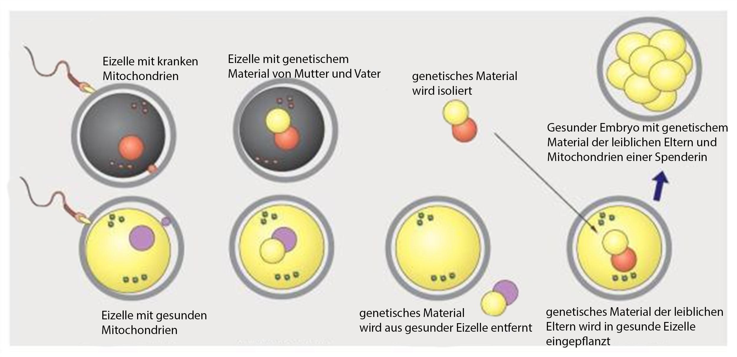 Das genetische Material aus der befruchteten Eizele der leiblichen Mutter wird in die entkernte, befruchtete Eizelle der Mitochondrien-Spenderin übertragen. (aus: Paula Amato et al., Fertil Steril 2014)